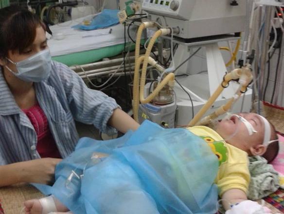 Cộng đồng mạng quyên tiền mua máy thở giúp bệnh nhi mắc sởi
