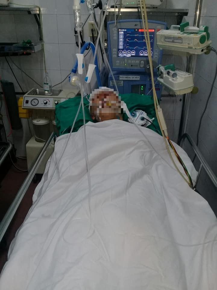 Con bị đánh chấn thương sọ não, mẹ đau xót cầu cứu cộng đồng mạng