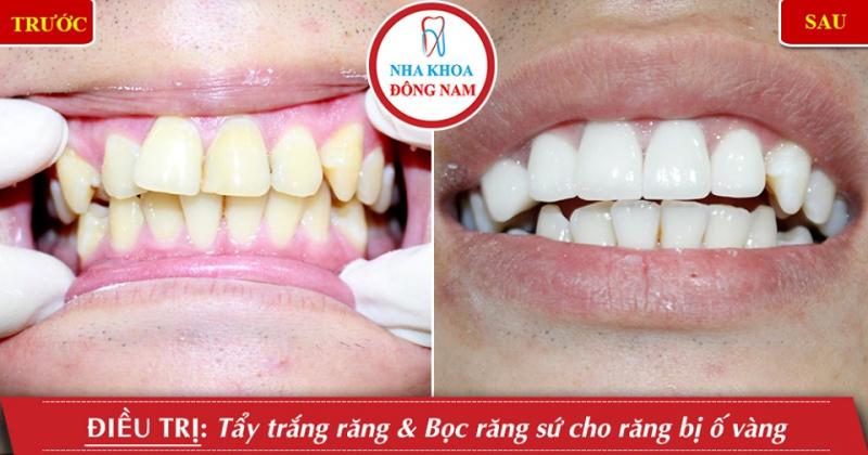 Top 9 địa chỉ tẩy trắng răng hiệu quả, an toàn nhất tại Tp HCM