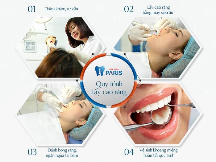 Top 10 Địa chỉ lấy cao răng an toàn và uy tín nhất ở Hà Nội