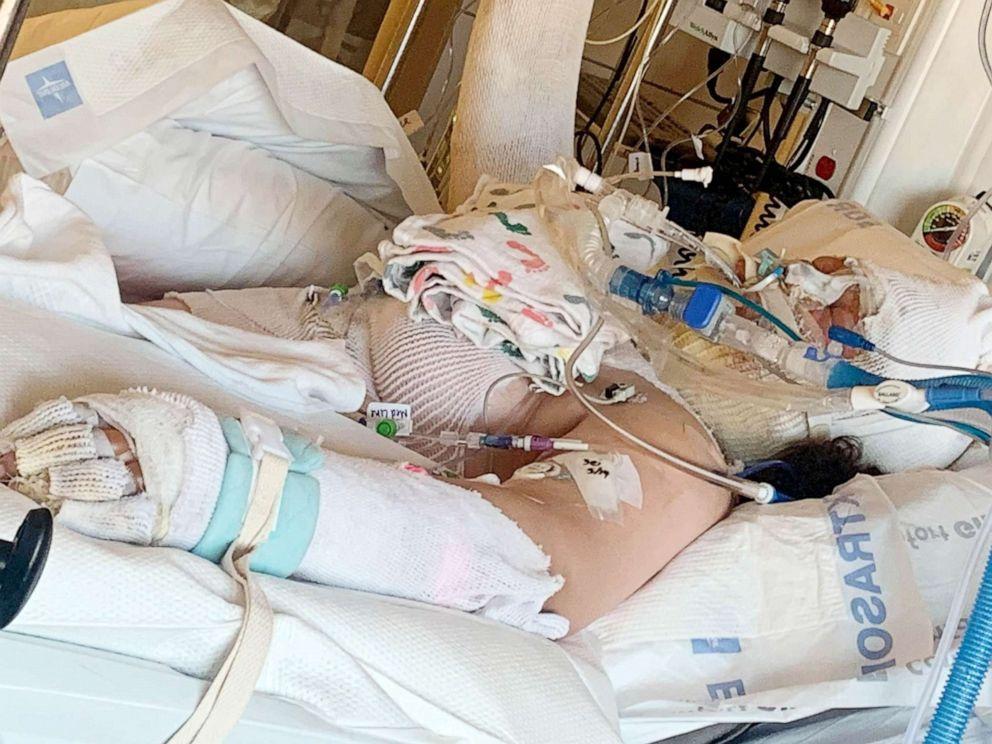 Bé gái 13 tuổi bỏng nặng vì làm theo video trên TikTok