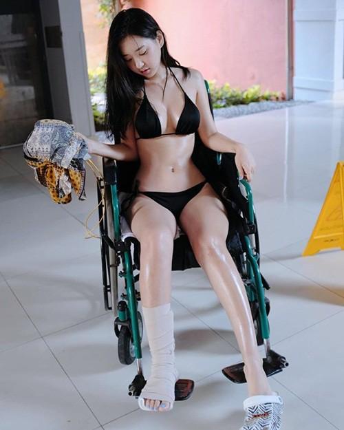 Bó bột, ngồi xe lăn nhưng vẫn mặc bikini gợi cảm, hot girl nóng bỏng khiến cả bệnh viện dậy sóng