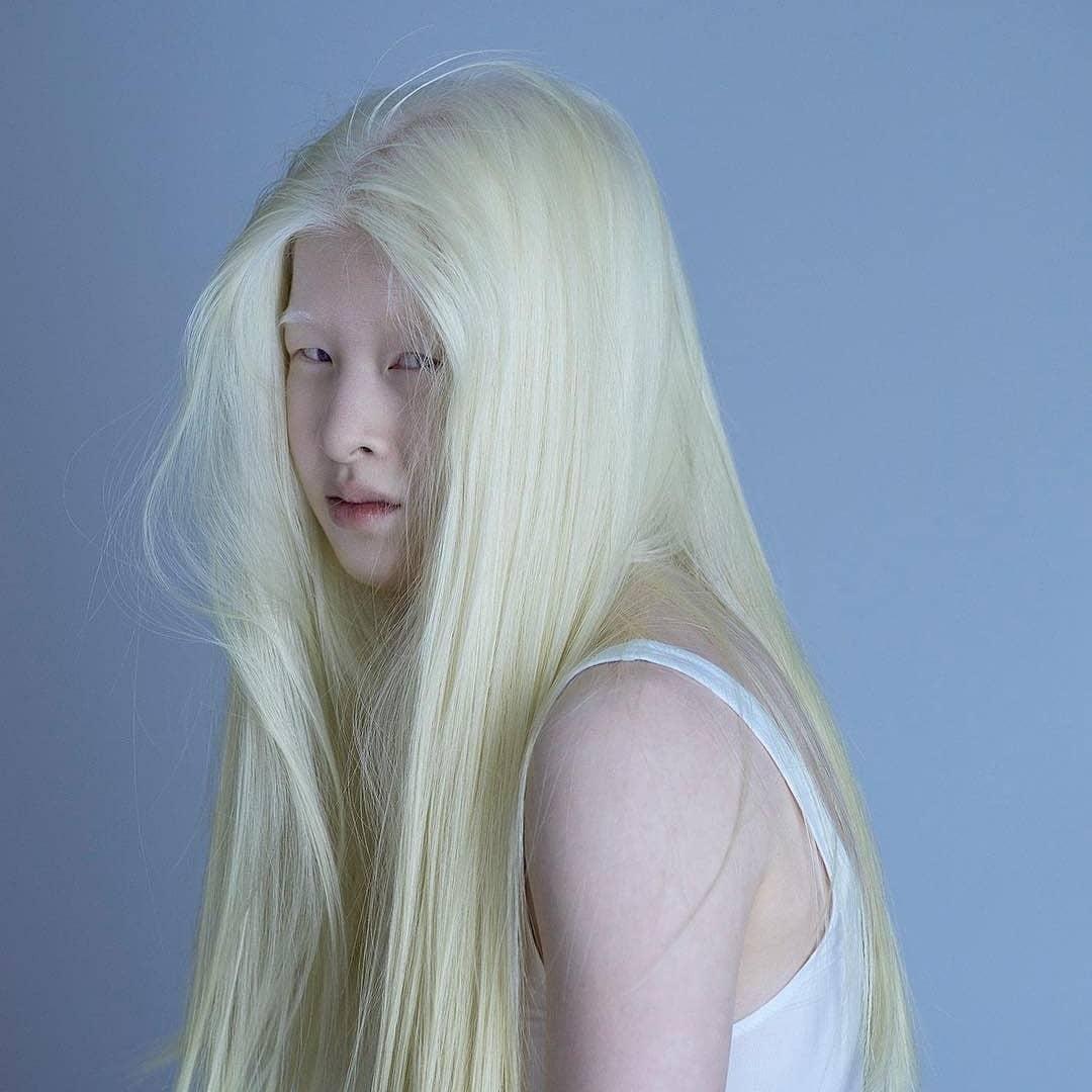 Những người mẫu bạch tạng phá vỡ tiêu chuẩn sắc đẹp