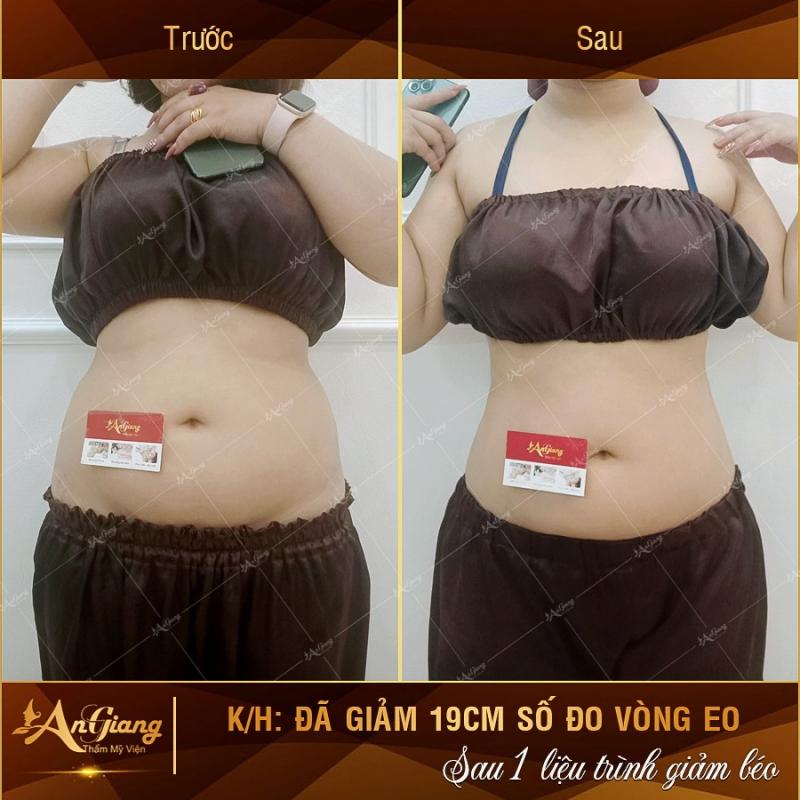 Top 4 Spa làm đẹp uy tín nhất Bỉm Sơn, Thanh Hóa