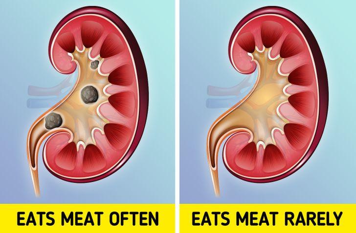 Top 11 Tác hại khó lường ảnh hưởng trực tiếp đến cơ thể khi ăn quá nhiều thịt