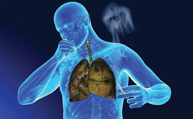 Top 8 điều cần biết về căn bệnh ung thư phổi