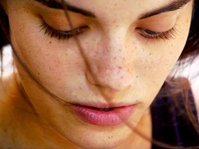 Top 10 Nguyên nhân gây ra nám da khiến bạn mất tự tin