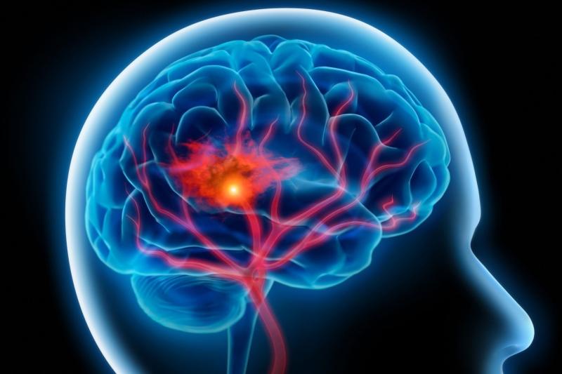 Top 5 Kinh nghiệm tầm soát đột quỵ bạn cần biết
