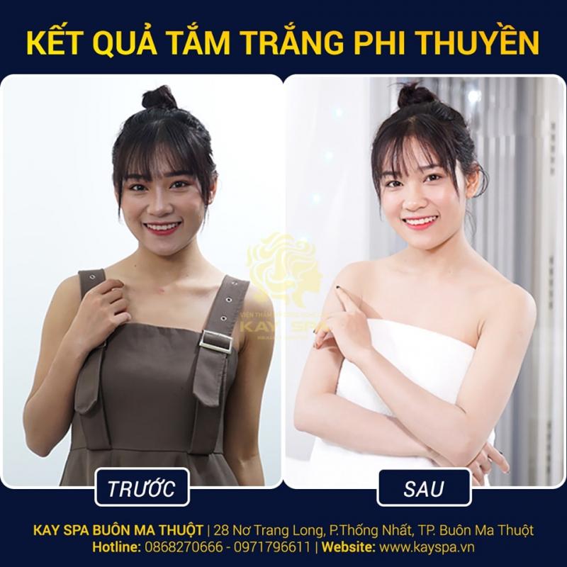 Top 10 Spa tắm trắng uy tín nhất TP. Buôn Ma Thuột