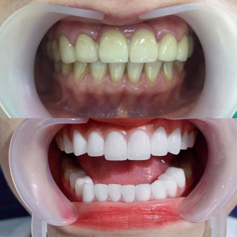 Top 6 Địa chỉ bọc răng sứ thẩm mỹ tốt nhất tại quận 4, TP. HCM