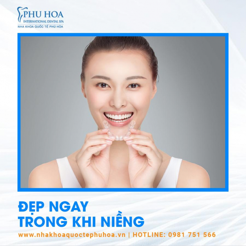 Top 12 Địa chỉ niềng răng rẻ nhất Hà Nội