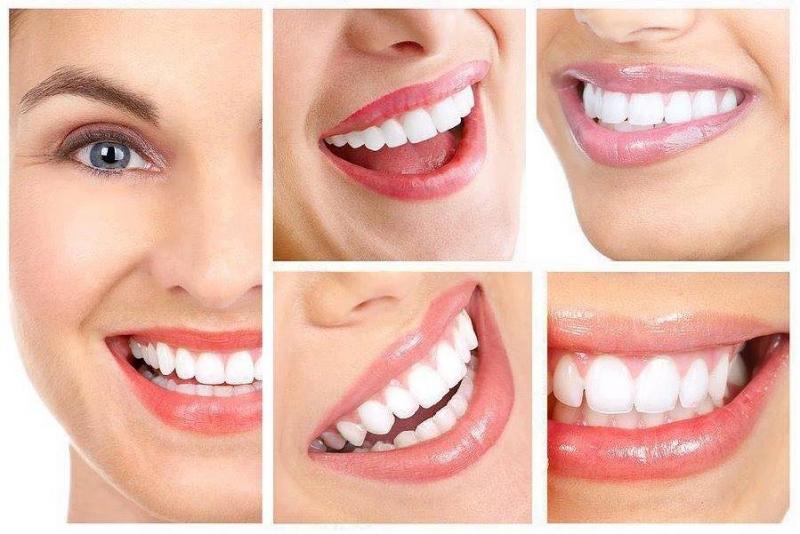 Top 6 địa chỉ lấy cao răng uy tín, chất lượng nhất tại Quảng Bình