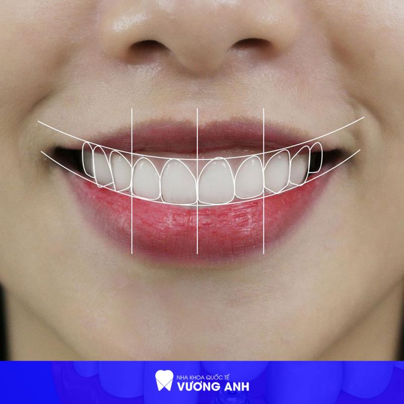 Top 8 Địa chỉ bọc răng sứ thẩm mỹ tốt nhất tại quận 9, TP. HCM