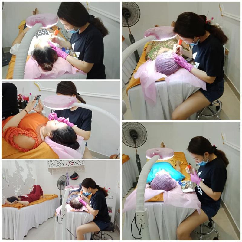 Điều trị mụn tại Quỳnh Anh Spa là
