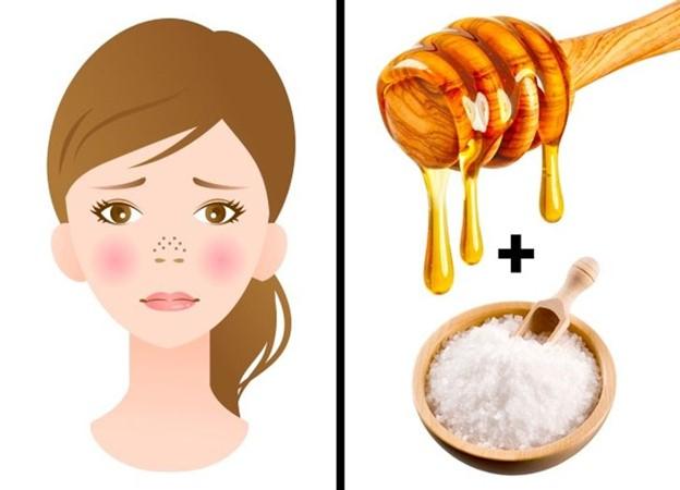 Top 8 Lời khuyên hữu ích giúp xóa mờ sẹo mụn và các khuyết điểm trên da