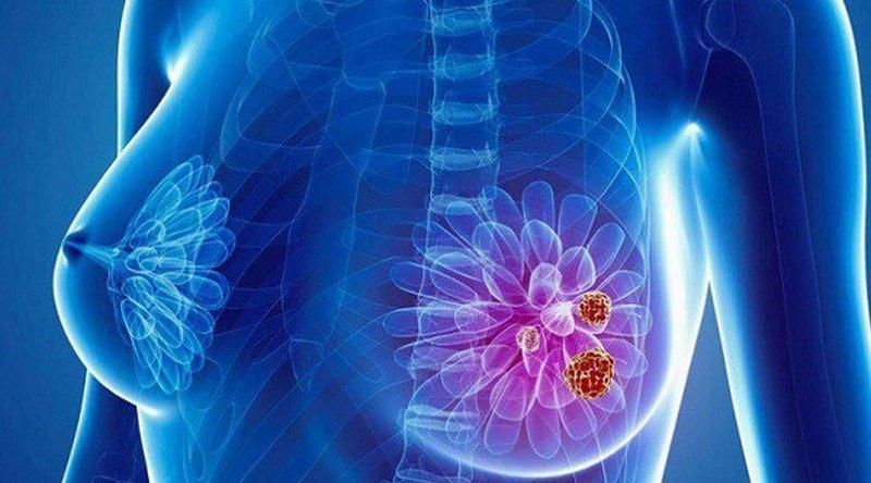 Top 5 Loại ung thư phổ biến nhất ở phụ nữ