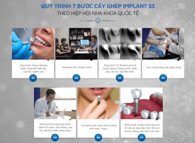 Top 9 địa chỉ trồng răng Implant tốt nhất tại Hà Nội