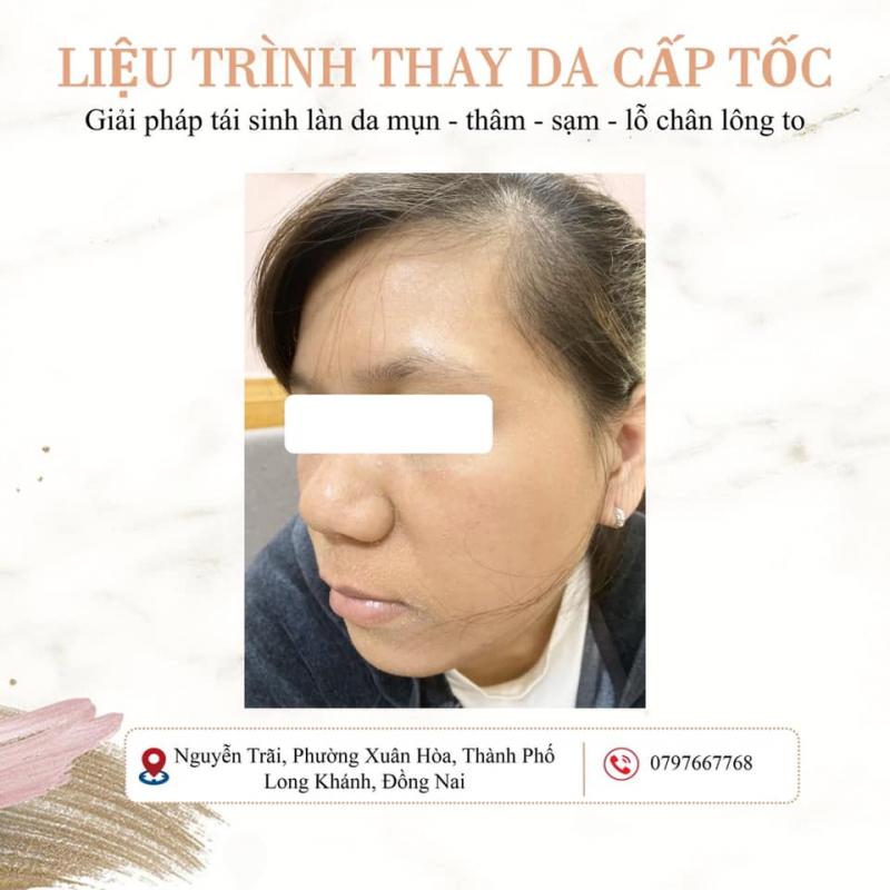 Top 10 Spa trị nám tốt nhất TP. Long Khánh, Đồng Nai