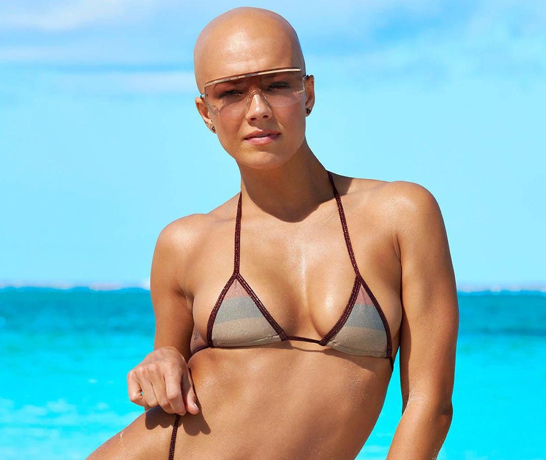 Nữ người mẫu đầu trọc đầu tiên lên tạp chí áo tắm
