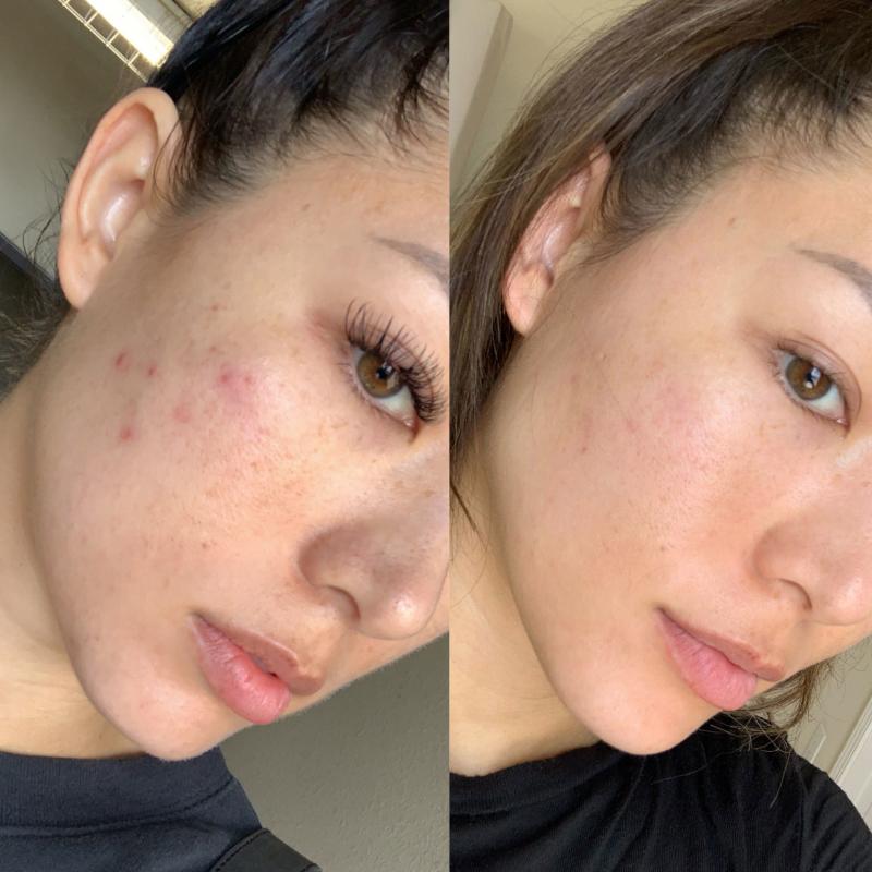 Trước và sau khi sử dụng Kem dưỡng ẩm SkinCeuticals Daily Moisture