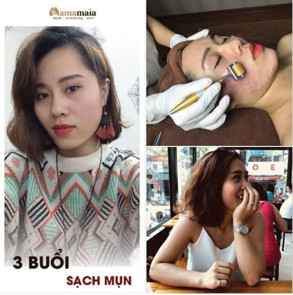 Top 7 địa chỉ spa trị mụn hiệu quả và uy tín nhất Hà Nội