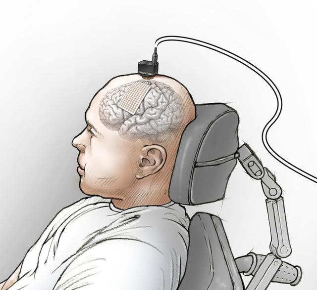 Các nhà khoa học nối não của một người câm với máy tính, và bây giờ anh ấy đã nói được