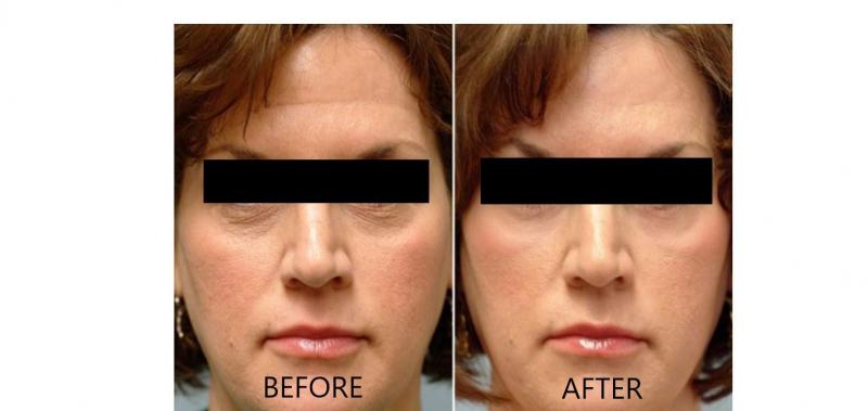 Trước và sau khi sử dụng SkinCeutical Phloretin CF