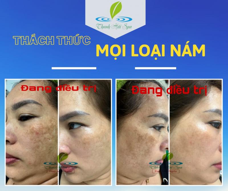 Spa Thanh Hải - Đà Nẵng