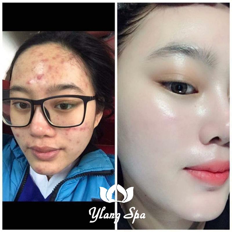 Top 5 Địa chỉ phun xăm thẩm mỹ đẹp nhất Sơn Tây, Hà Nội