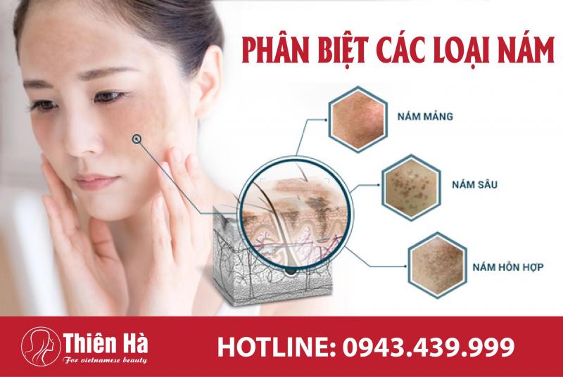 Top 10 Địa chỉ trị nám hiệu quả nhất ở Hà Nội