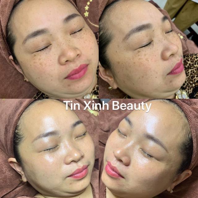 Tin Xinh Beauty - Viện thẩm mỹ công nghệ cao