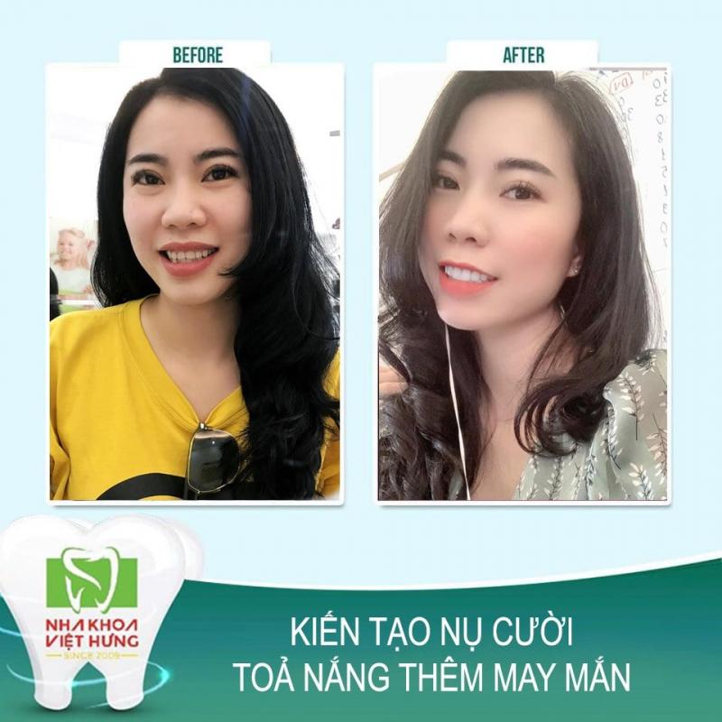 Top 9 Phòng khám nha khoa uy tín nhất quận Long Biên, Hà Nội