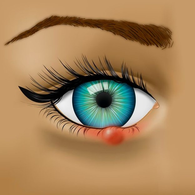 Top 7 Vấn đề về sức khỏe mà đôi mắt đang báo hiệu