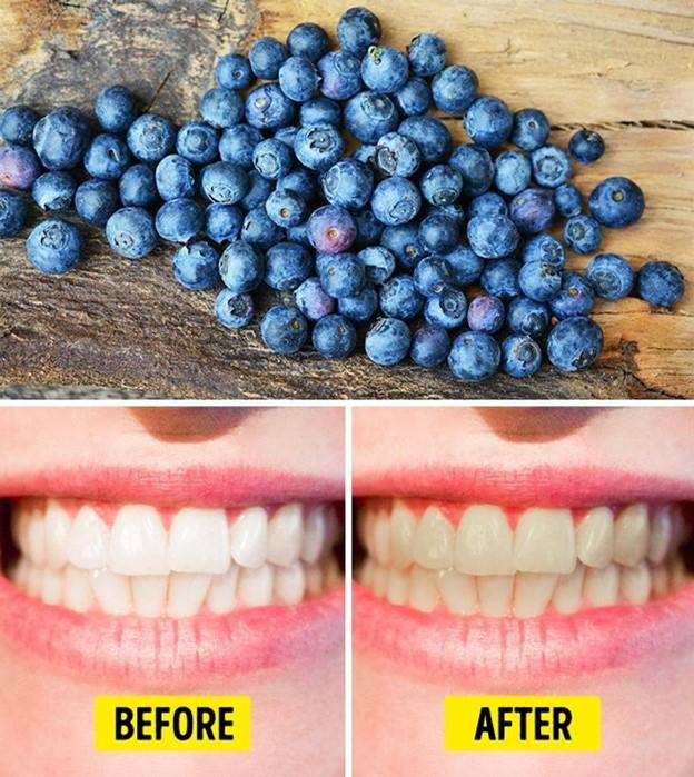 Top 10 Thực phẩm gây hại nghiêm trọng cho răng của bạn