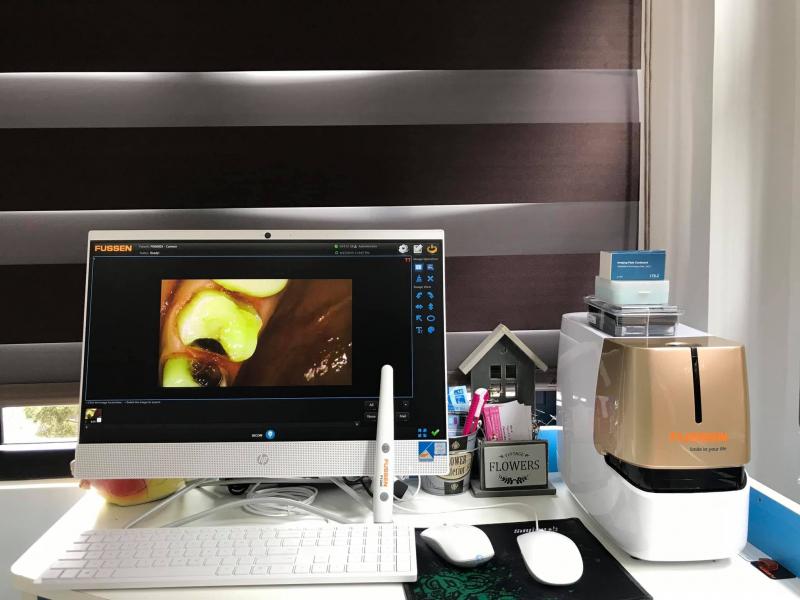Dòng máy quét phim phopshor được ưu chuộng nhất hiện nay