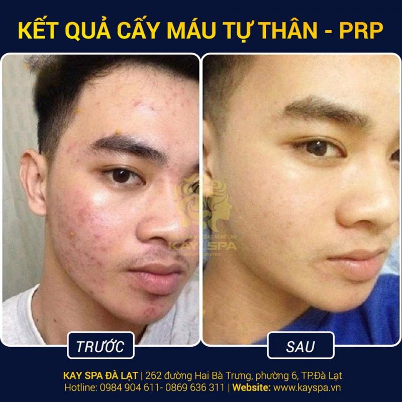 Kay Spa Đà Lạt - Skin Care & Beauty Clinic