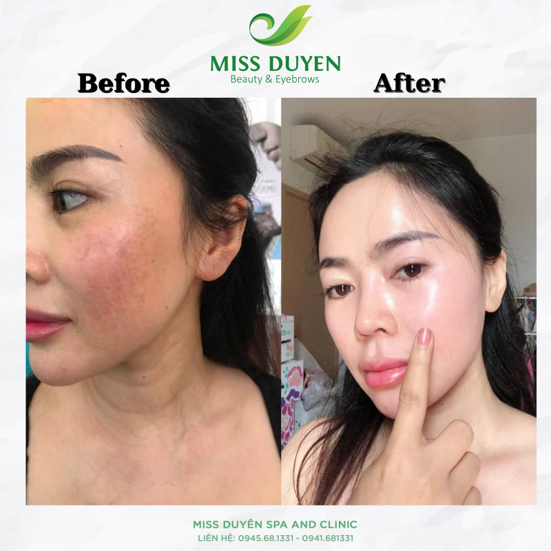 Miss Duyên Spa and Clinic