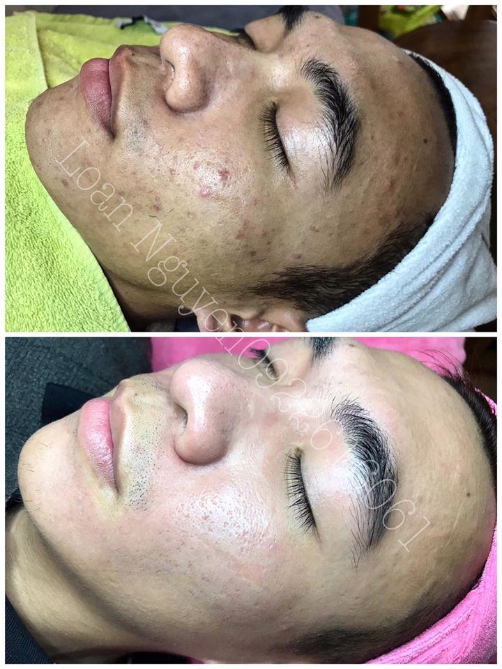 Loan Nguyen Skincare & Spa