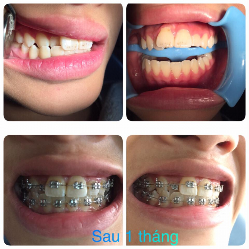 Hình ảnh răng sau niềng 1 tháng tại Dr.Cường