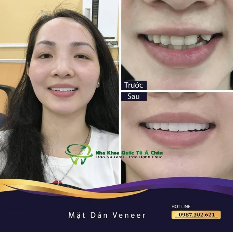 Top 10 Địa chỉ hàn (trám) răng hiệu quả tốt nhất tại Hà Nội