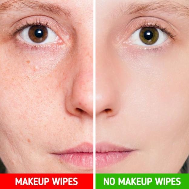 Top 7 Sai lầm khi chăm sóc da có thể khiến da bạn nổi mụn