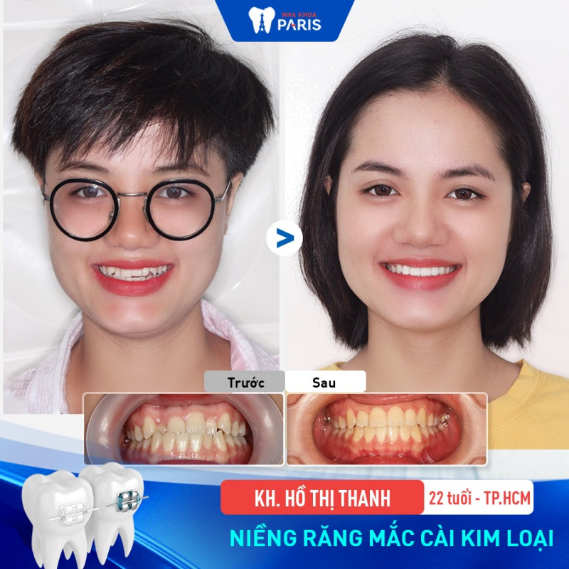 Top 6 Địa chỉ niềng răng uy tín nhất quận Tân Bình, TP. HCM