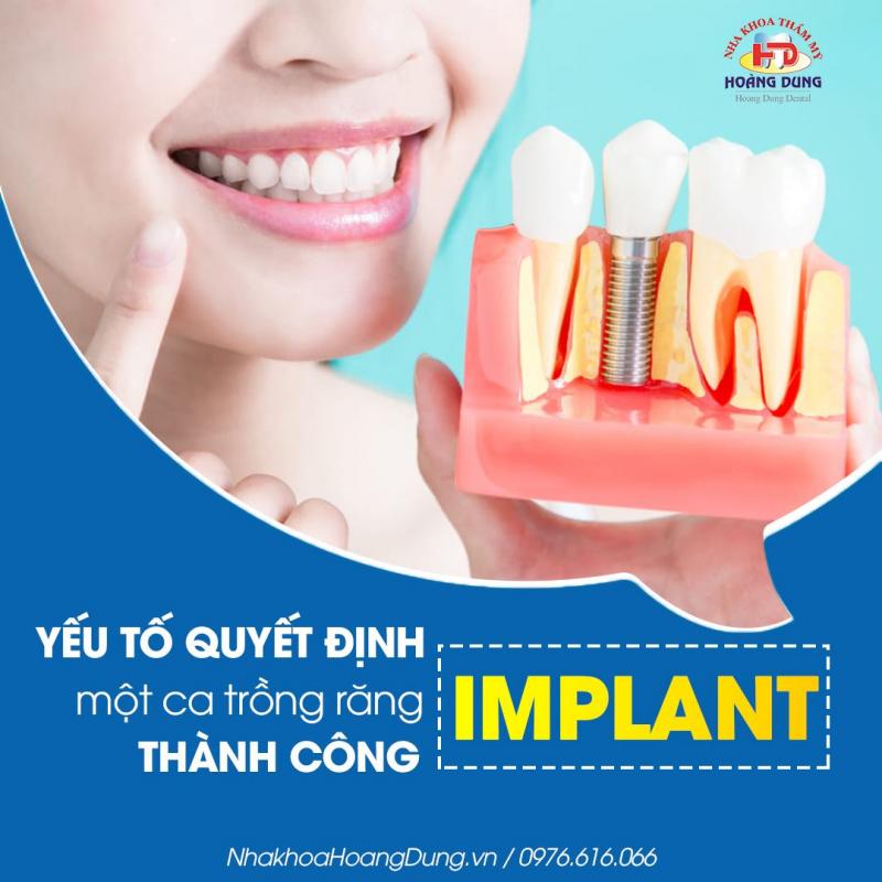 Top 10 Địa chỉ trồng răng implant tốt nhất tỉnh Nghệ An