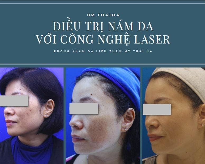 Top 14 Địa chỉ chữa nám uy tín tại Hà Nội