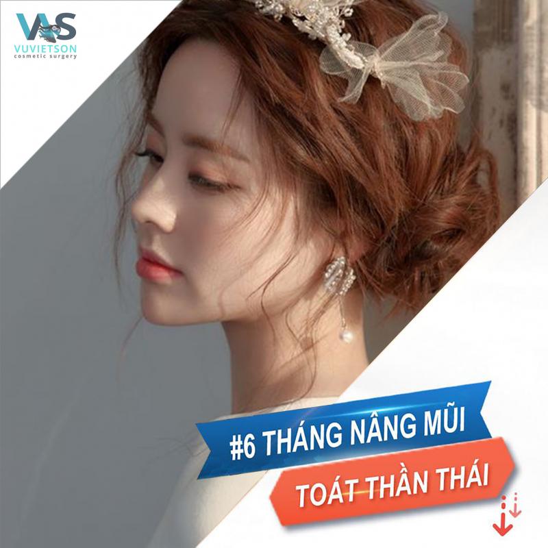 Top 5 Địa chỉ nâng mũi đẹp và an toàn nhất tỉnh Khánh Hòa