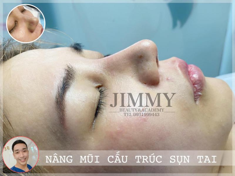 Top 3 Địa chỉ nâng mũi đẹp và an toàn nhất tỉnh Quảng Nam