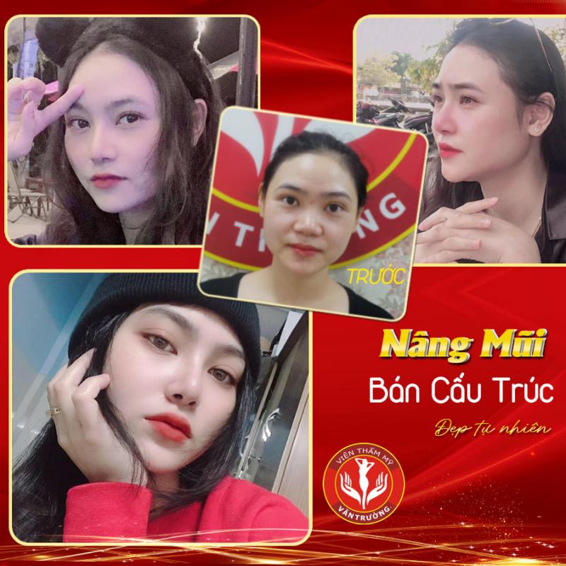 Top 9 Địa chỉ phẫu thuật thẩm mỹ uy tín nhất tại Đà Nẵng